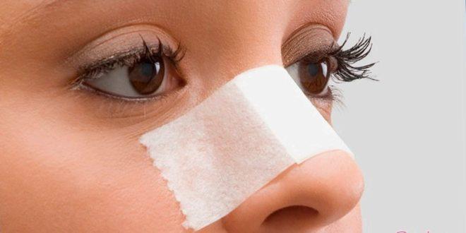 Пластическая операция на нос окажет помощь поменяться